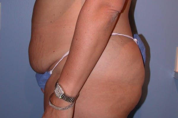 Liposuction Gallery - Patient 4752203 - Image 3