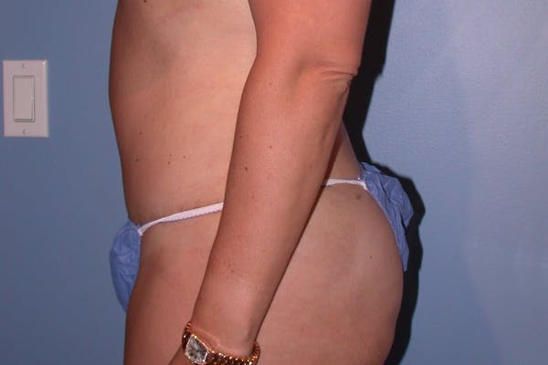 Liposuction Gallery - Patient 4752203 - Image 4