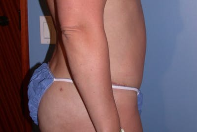 Liposuction Gallery - Patient 4752203 - Image 6