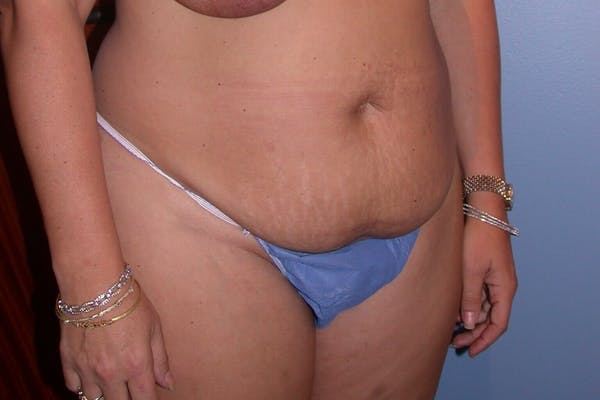 Liposuction Gallery - Patient 4752203 - Image 7