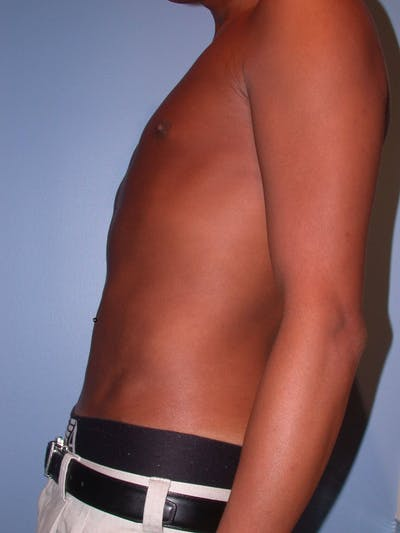 Liposuction Gallery - Patient 4752205 - Image 4