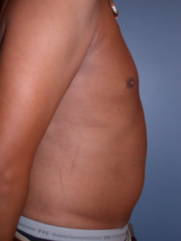 Liposuction Gallery - Patient 4752205 - Image 5