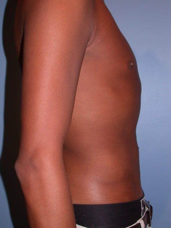Liposuction Gallery - Patient 4752205 - Image 6