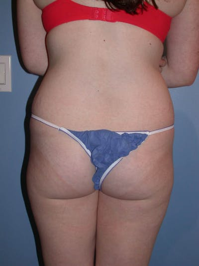 Liposuction Gallery - Patient 4752207 - Image 1