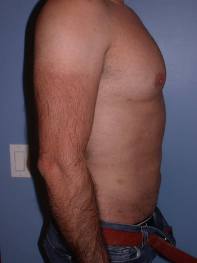 Liposuction Gallery - Patient 4752211 - Image 4