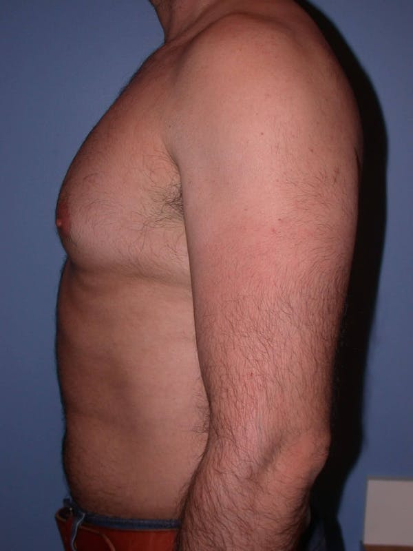 Liposuction Gallery - Patient 4752211 - Image 5