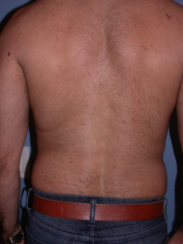 Liposuction Gallery - Patient 4752211 - Image 7