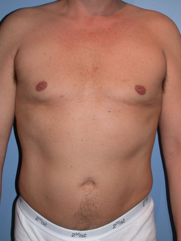 Liposuction Gallery - Patient 4752215 - Image 2