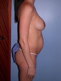 Mommy Makeover Gallery - Patient 4752227 - Image 1