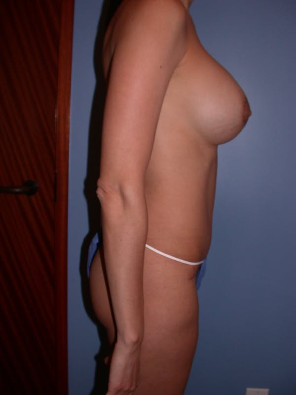 Mommy Makeover Gallery - Patient 4752227 - Image 2