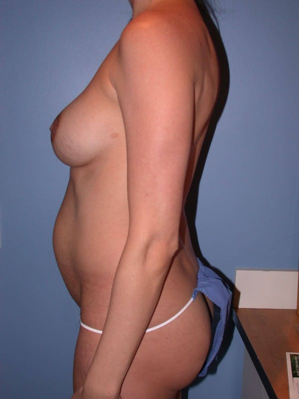 Mommy Makeover Gallery - Patient 4752227 - Image 5