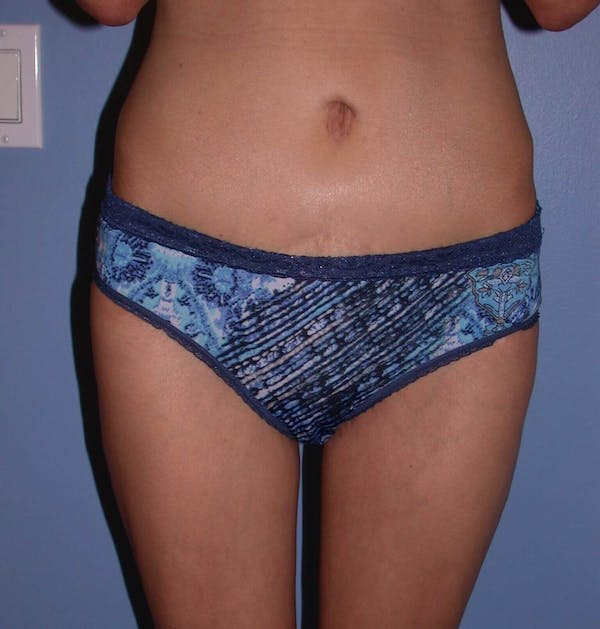 Thigh Lift Gallery - Patient 4752226 - Image 2