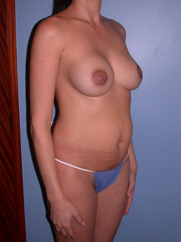 Mommy Makeover Gallery - Patient 4752227 - Image 7