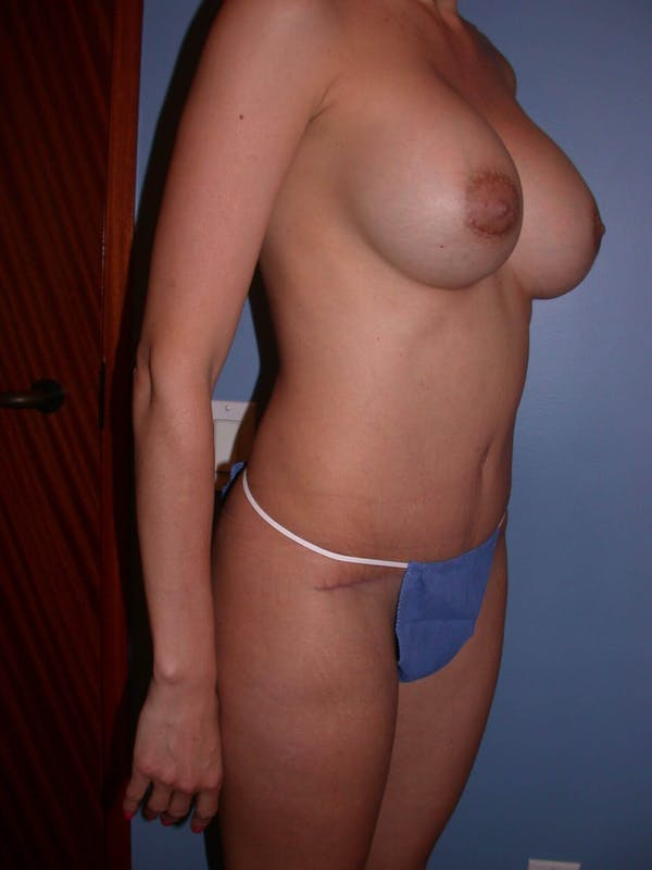 Mommy Makeover Gallery - Patient 4752227 - Image 8