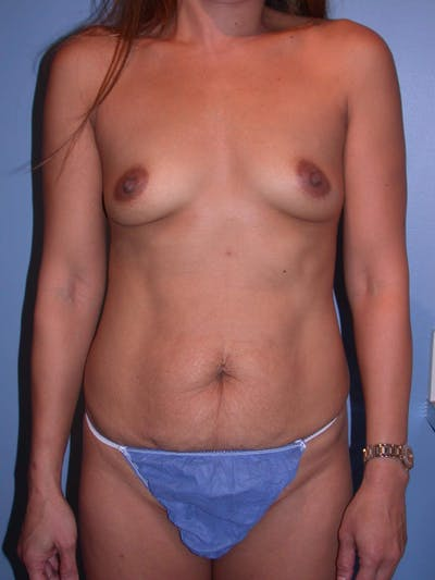 Mommy Makeover Gallery - Patient 4752228 - Image 1