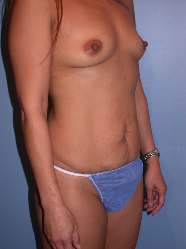 Mommy Makeover Gallery - Patient 4752228 - Image 7