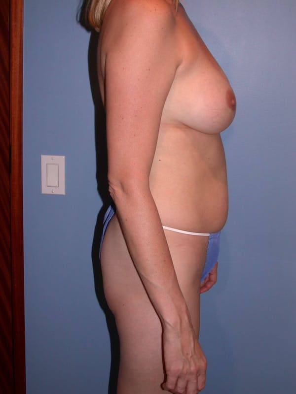Mommy Makeover Gallery - Patient 4752229 - Image 1