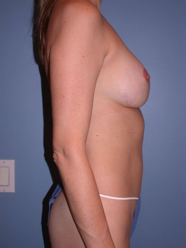 Mommy Makeover Gallery - Patient 4752229 - Image 2
