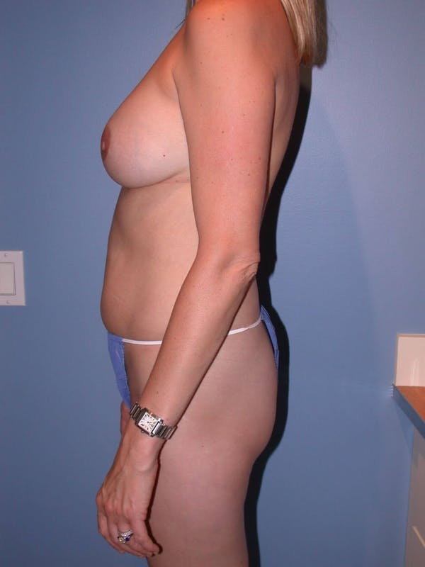 Mommy Makeover Gallery - Patient 4752229 - Image 3