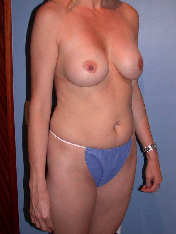 Mommy Makeover Gallery - Patient 4752229 - Image 5