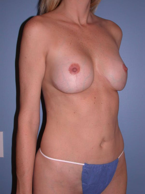 Mommy Makeover Gallery - Patient 4752229 - Image 6