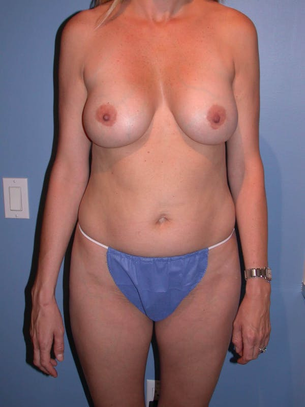 Mommy Makeover Gallery - Patient 4752229 - Image 7