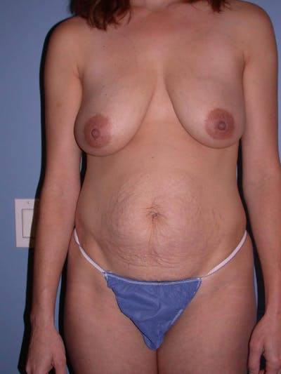 Mommy Makeover Gallery - Patient 4752230 - Image 1