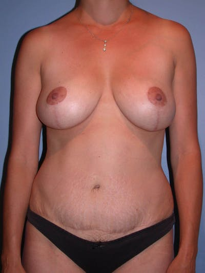 Mommy Makeover Gallery - Patient 4752230 - Image 2