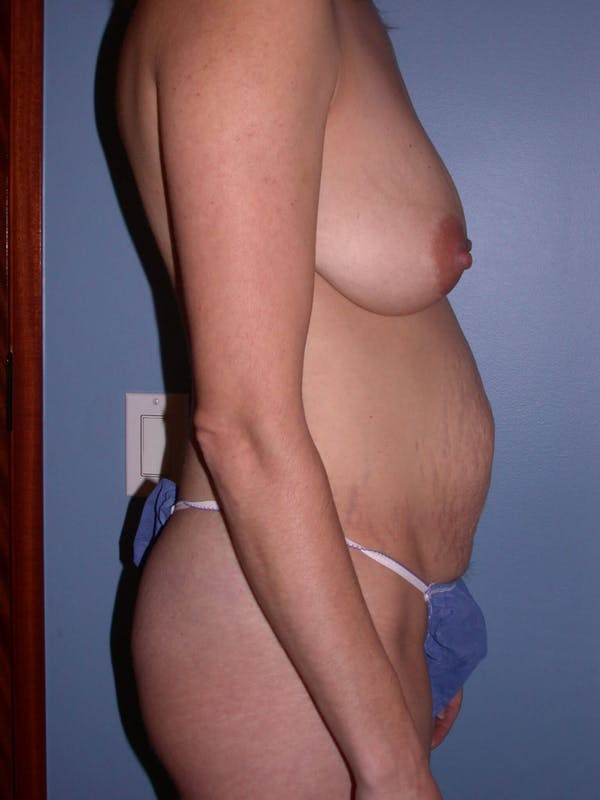 Mommy Makeover Gallery - Patient 4752230 - Image 3