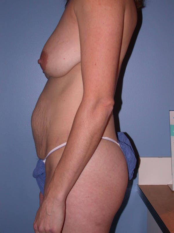 Mommy Makeover Gallery - Patient 4752230 - Image 5