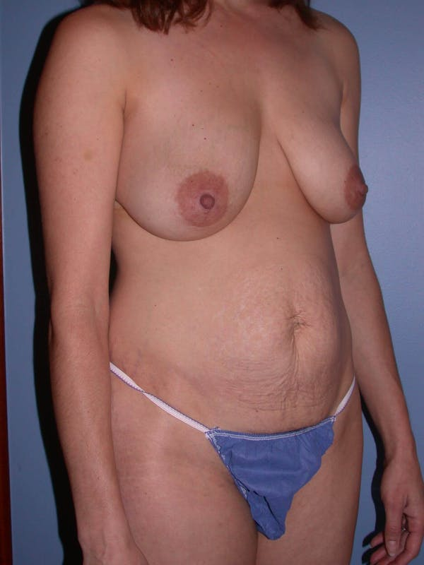 Mommy Makeover Gallery - Patient 4752230 - Image 7