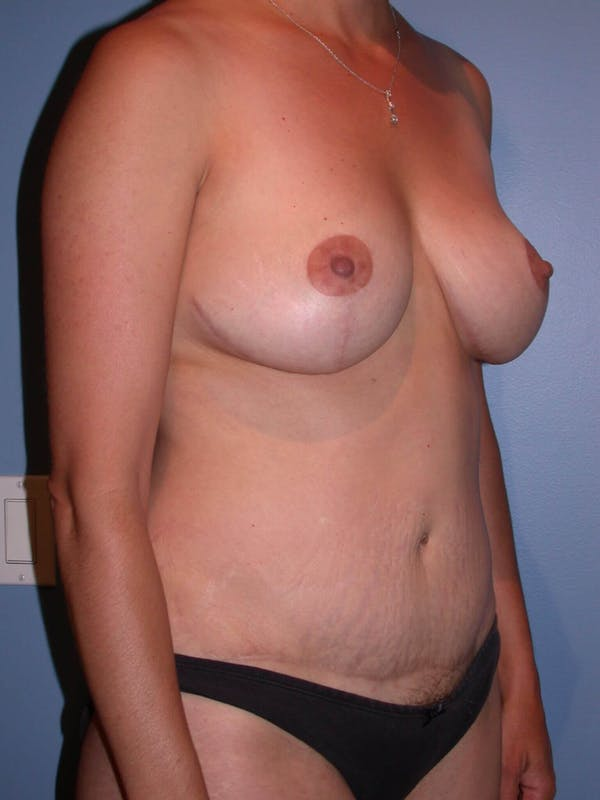 Mommy Makeover Gallery - Patient 4752230 - Image 8