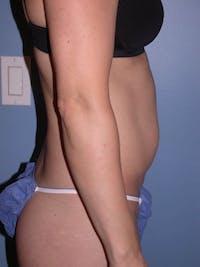 Mommy Makeover Gallery - Patient 4752231 - Image 1