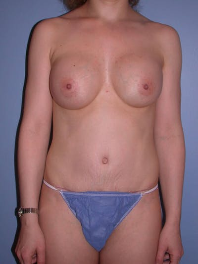 Mommy Makeover Gallery - Patient 4752232 - Image 2