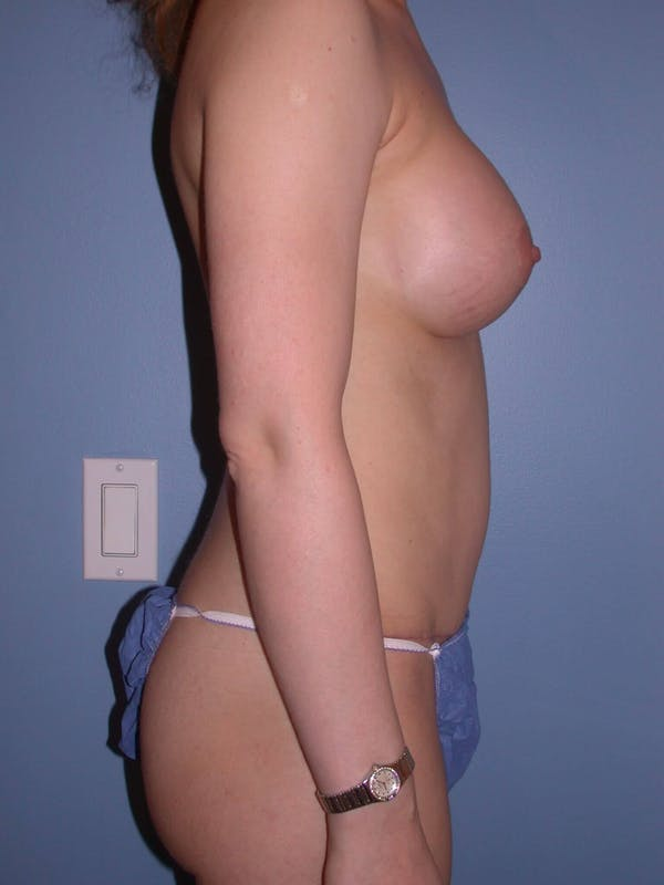 Mommy Makeover Gallery - Patient 4752232 - Image 4