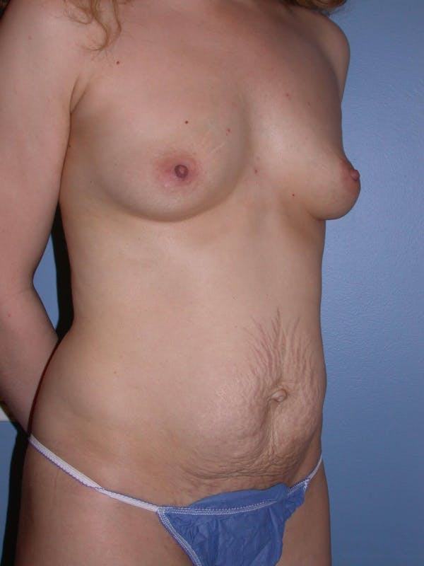 Mommy Makeover Gallery - Patient 4752232 - Image 7