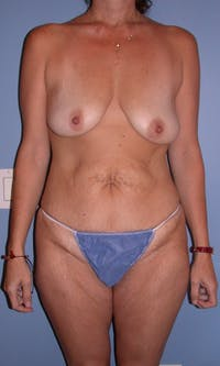 Mommy Makeover Gallery - Patient 4752234 - Image 1