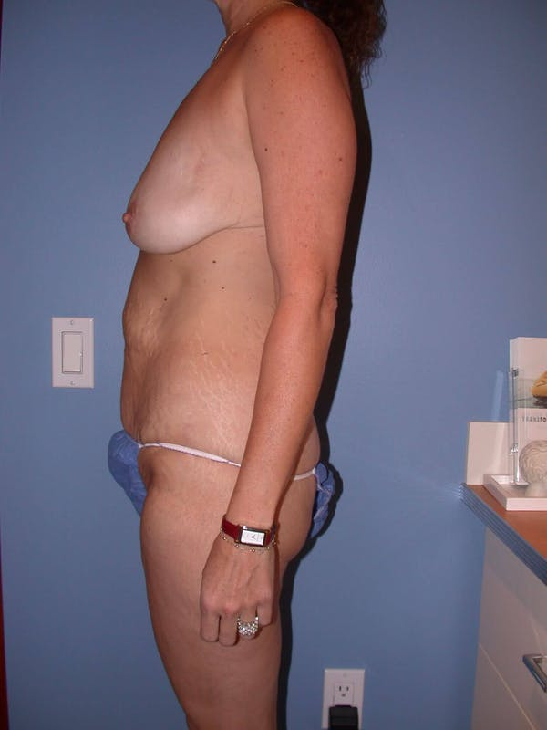 Mommy Makeover Gallery - Patient 4752234 - Image 3