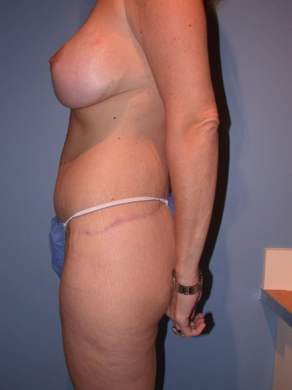 Mommy Makeover Gallery - Patient 4752234 - Image 4