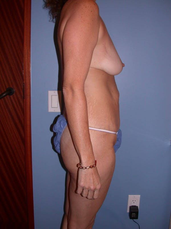 Mommy Makeover Gallery - Patient 4752234 - Image 5