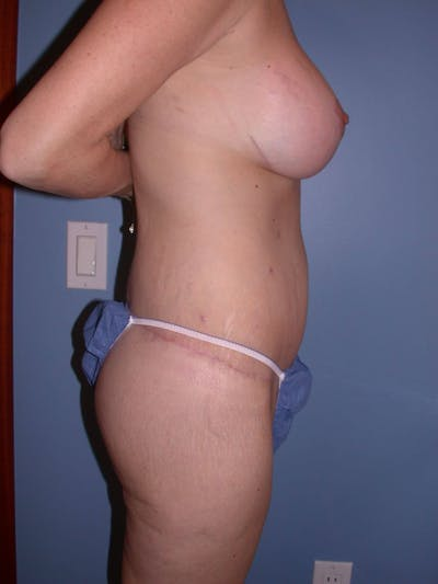 Mommy Makeover Gallery - Patient 4752234 - Image 6