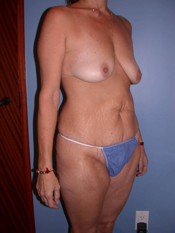 Mommy Makeover Gallery - Patient 4752234 - Image 7