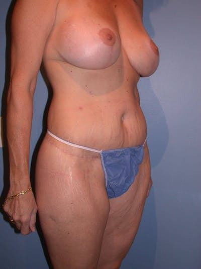 Mommy Makeover Gallery - Patient 4752234 - Image 8