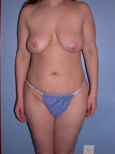 Mommy Makeover Gallery - Patient 4752236 - Image 1