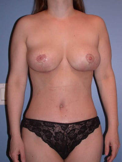 Mommy Makeover Gallery - Patient 4752236 - Image 2