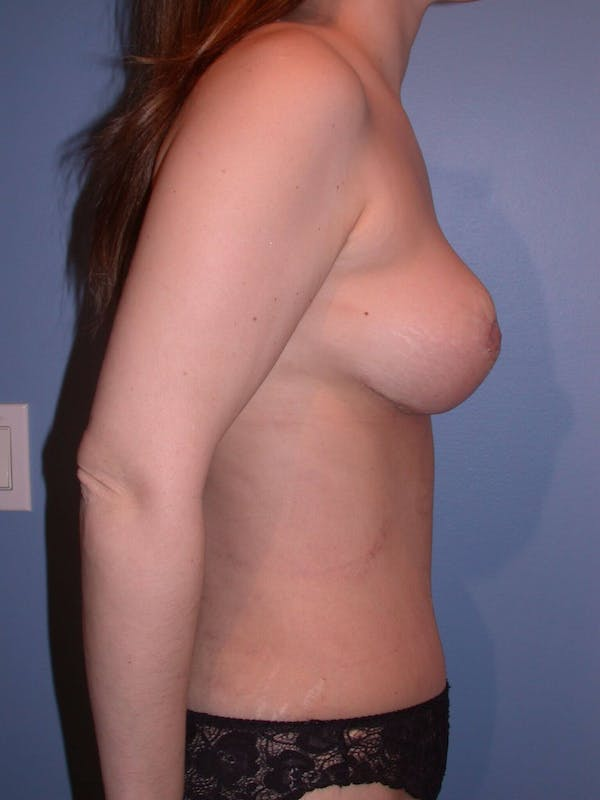 Mommy Makeover Gallery - Patient 4752236 - Image 4