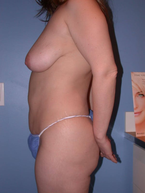 Mommy Makeover Gallery - Patient 4752236 - Image 5