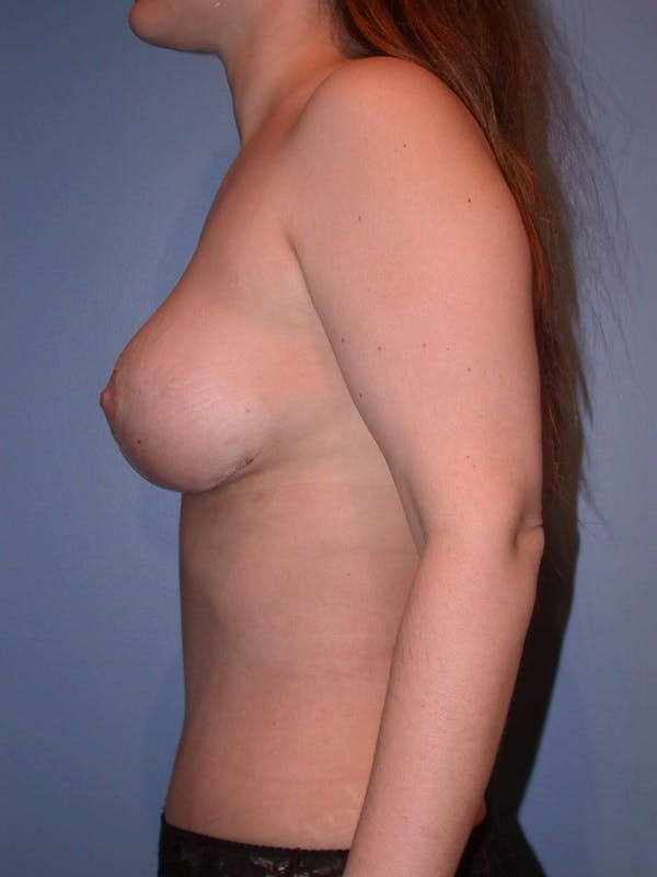 Mommy Makeover Gallery - Patient 4752236 - Image 6