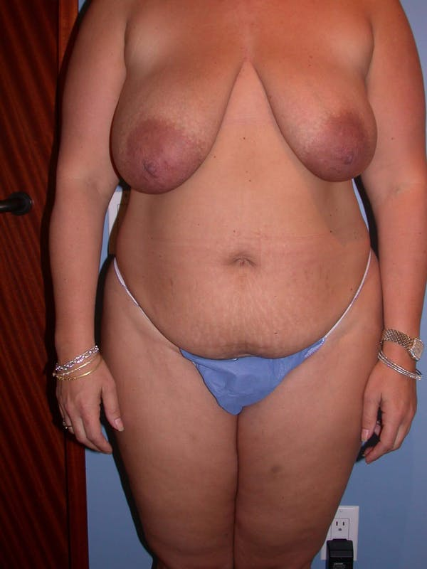 Mommy Makeover Gallery - Patient 4752258 - Image 1