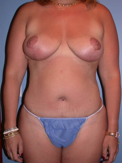 Mommy Makeover Gallery - Patient 4752258 - Image 2
